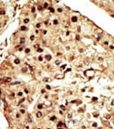 Immunohistochemistry (Formalin/PFA-fixed paraffin-embedded sections) - Anti-TRPM7 antibody - C-terminal (ab135817)