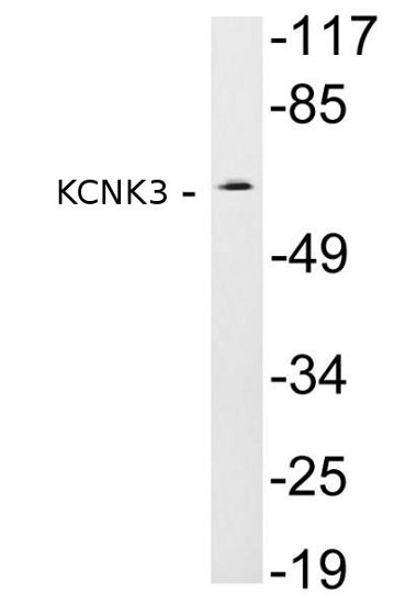 Western blot - Anti-KCNK3/TASK1 antibody (ab135883)