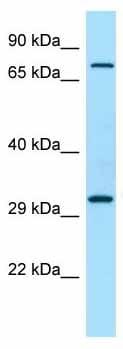 Western blot - Anti-PPFIA4 antibody - N-terminal (ab136305)