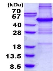SDS-PAGE - Recombinant Human PHF11 protein (denatured) (ab136352)