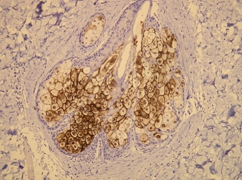 Immunohistochemistry (Formalin/PFA-fixed paraffin-embedded sections) - Anti-MUC1 antibody [G22-L] (ab136615)