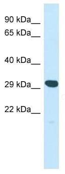 Western blot - Anti-YIF1A antibody - N-terminal (ab136627)