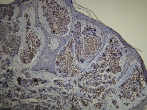 Immunohistochemistry (Formalin/PFA-fixed paraffin-embedded sections) - Anti-S100 antibody [D28-E] (ab136629)