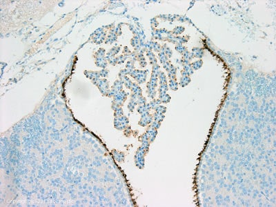 Immunohistochemistry (Formalin/PFA-fixed paraffin-embedded sections) - Anti-ARL13B antibody [N295B/66] (ab136648)