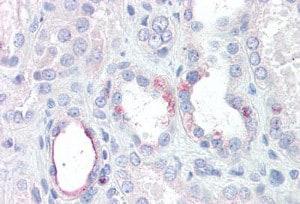 Immunohistochemistry (Formalin/PFA-fixed paraffin-embedded sections) - Anti-RHBG antibody (ab136658)