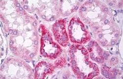 Immunohistochemistry (Formalin/PFA-fixed paraffin-embedded sections) - Anti-MARK2 antibody - N-terminal (ab136872)