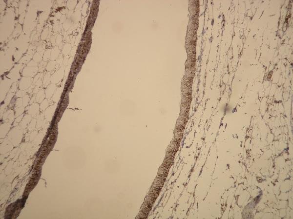 Immunohistochemistry (Formalin/PFA-fixed paraffin-embedded sections) - Anti-Actin antibody [S12-I] (ab136905)