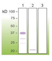 Western blot - Anti-Prion protein PrP antibody [T16-R] (ab136919)