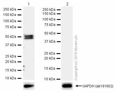 Western blot - Anti-CYP2C19 antibody [EPR6576] (ab137015)