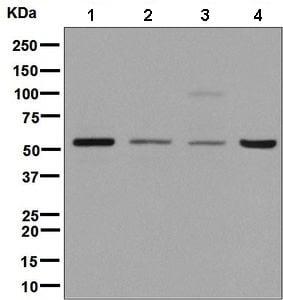Western blot - Anti-E1B-AP5 antibody [EPR2632(2)] (ab137016)