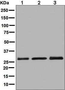Western blot - Anti-SCGN/Secretagogin antibody [EPR7477] (ab137017)