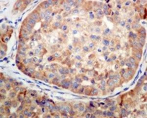 Immunohistochemistry (Formalin/PFA-fixed paraffin-embedded sections) - Anti-SERCA2 ATPase antibody [EPR9393] (ab137020)