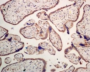 Immunohistochemistry (Formalin/PFA-fixed paraffin-embedded sections) - Anti-SEC62 antibody [EPR9212] (ab137022)
