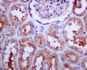 Immunohistochemistry (Formalin/PFA-fixed paraffin-embedded sections) - Anti-TRPV5 antibody [EPR8875] (ab137028)