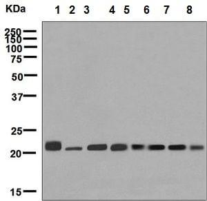 Western blot - Anti-RAB7 antibody [EPR7589] (ab137029)