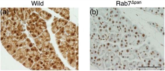 Immunohistochemistry (Formalin/PFA-fixed paraffin-embedded sections) - Anti-RAB7 antibody [EPR7589] (ab137029)