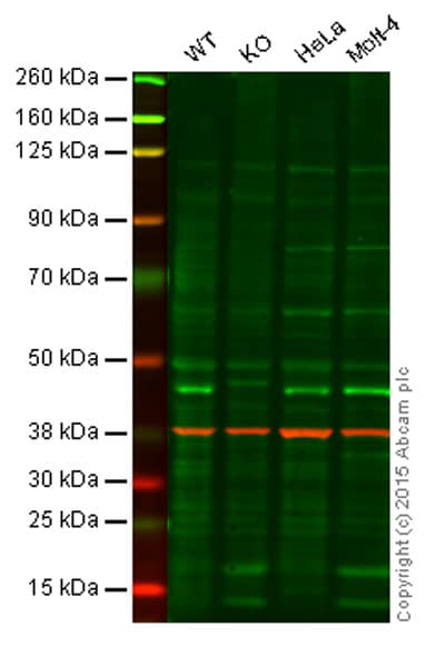 Western blot - Anti-ERCC8 antibody [EPR9237] (ab137033)