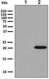 Western blot - Anti-SOD2/MnSOD (acetyl K68) antibody [EPVANR2] (ab137037)