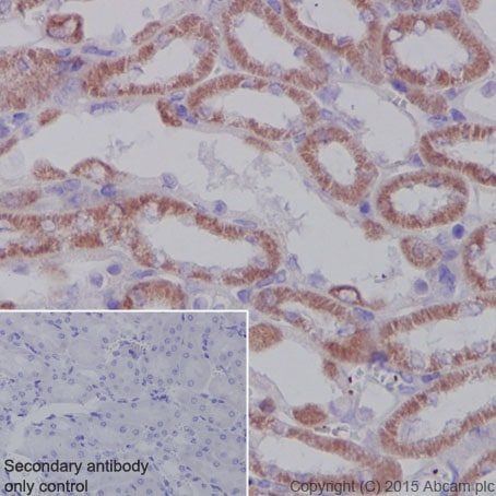 Immunohistochemistry (Formalin/PFA-fixed paraffin-embedded sections) - Anti-SDHA antibody [EPR9043(B)] (ab137040)