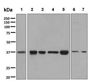 Western blot - Anti-GNAI2 antibody [EPR9468] (ab137050)