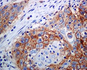Immunohistochemistry (Formalin/PFA-fixed paraffin-embedded sections) - Anti-ATP1B3 antibody [EPR8981] (ab137055)