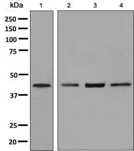 Western blot - Anti-CD161 antibody [EP7169] (ab137059)