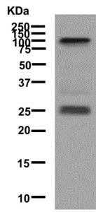 Western blot - Anti-Melanoma gp100 antibody [EPR4864] (ab137062)