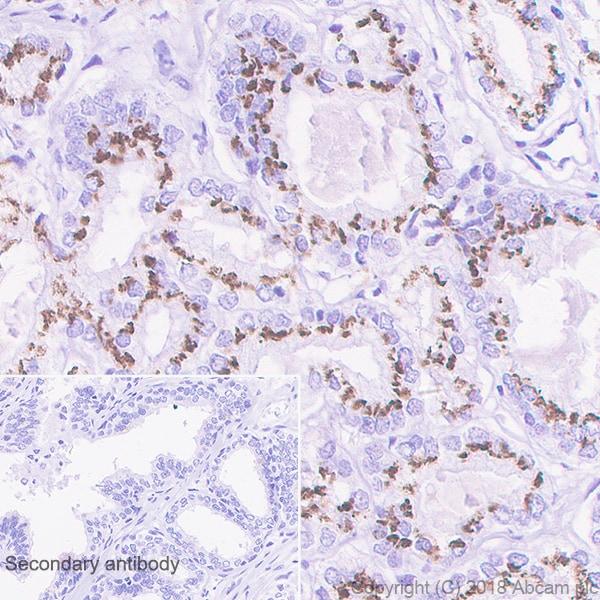 Immunohistochemistry (Formalin/PFA-fixed paraffin-embedded sections) - Anti-SLC45A3 antibody [EPR4795(2)] (ab137065)