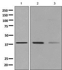 Western blot - Anti-Arg2 antibody [EPR9473] (ab137069)