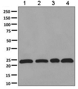 Western blot - Anti-Dlx6 antibody [EPR9474] (ab137079)