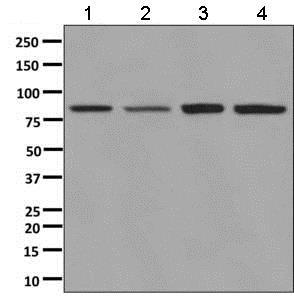 Western blot - Anti-ALDH16A1 antibody [EPR9217] (ab137082)