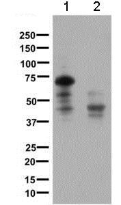 Western blot - Anti-Somatostatin Receptor 1/SSTR1 antibody [UMB7] (ab137083)