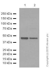 Western blot - Anti-RNF128/GRAIL antibody [EPR7426(2)] (ab137088)