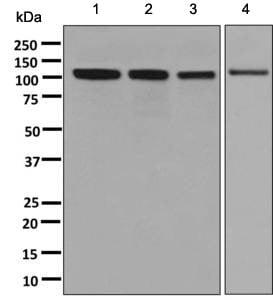 Western blot - Anti-ANKRD28 antibody [EPR9211] (ab137091)