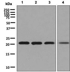 Western blot - Anti-RAB22A antibody [EPR9486] (ab137093)