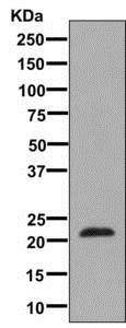 Western blot - Anti-Placental lactogen antibody [EPR8265] (ab137099)
