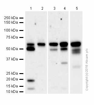 Western blot - Anti-Staufen/STAU1 antibody [EPR7966] (ab137100)