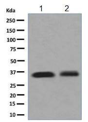 Western blot - Anti-delta Sarcoglycan antibody [EPR8706] (ab137101)