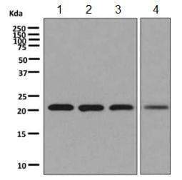 Western blot - Anti-NAT14 antibody [EPR9376] (ab137103)