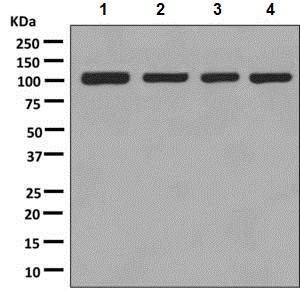 Western blot - Anti-MetRS/MARS antibody [EPR9873(B)] (ab137105)