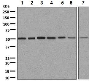 Western blot - Anti-Proteasome 19S S5A/ASF antibody [EPR8936] (ab137109)