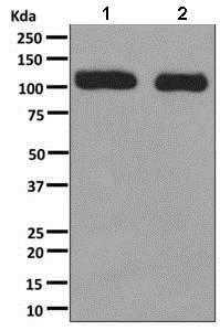 Western blot - Anti-RAI14 antibody [EPR8518] (ab137118)