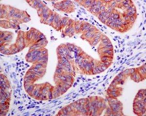 Immunohistochemistry (Formalin/PFA-fixed paraffin-embedded sections) - Anti-P4HB antibody [EPR9498] (ab137119)
