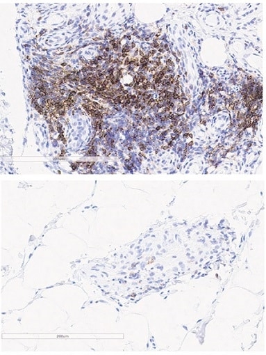 Immunohistochemistry (Formalin/PFA-fixed paraffin-embedded sections) - Anti-PD1 antibody [EPR4877(2)] (ab137132)