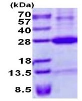 SDS-PAGE - Recombinant Human RAET1E protein (denatured) (ab137171)
