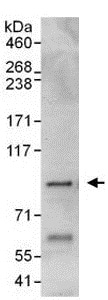 Immunoprecipitation - Anti-Pantothenate kinase 4 antibody (ab137243)
