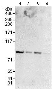 Western blot - Anti-Pantothenate kinase 4 antibody (ab137243)