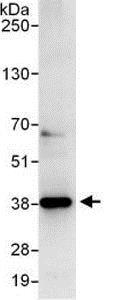 Immunoprecipitation - Anti-C20orf77 antibody (ab137246)