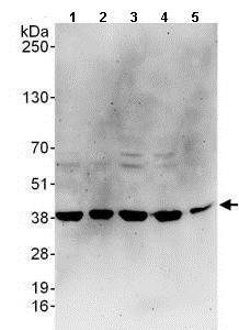 Western blot - Anti-C20orf77 antibody (ab137246)