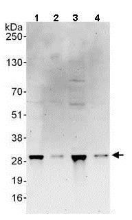 Western blot - Anti-RRP41 antibody (ab137250)